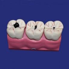 B10009 Модель кариеса зубов